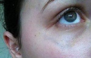 Círculos oscuros bajo los ojos: qué los causa y cómo eliminarlos