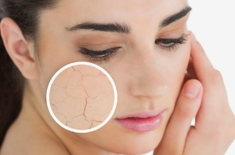 piel seca de la cara