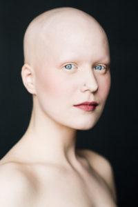 La alopecia femenina en fotografías